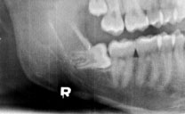 Wisdom teeth: Making the removal as painless as possible